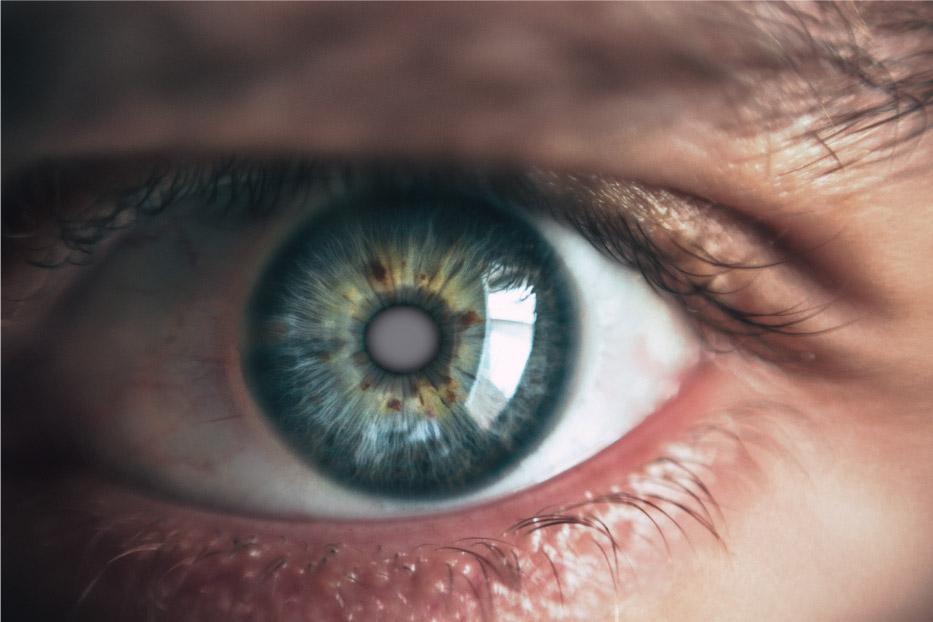 Nahaufnahme eines Auge mit Katarakt