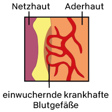 Illustration des Netzhauthintergrunds bei der feuchten Makuladegeneration