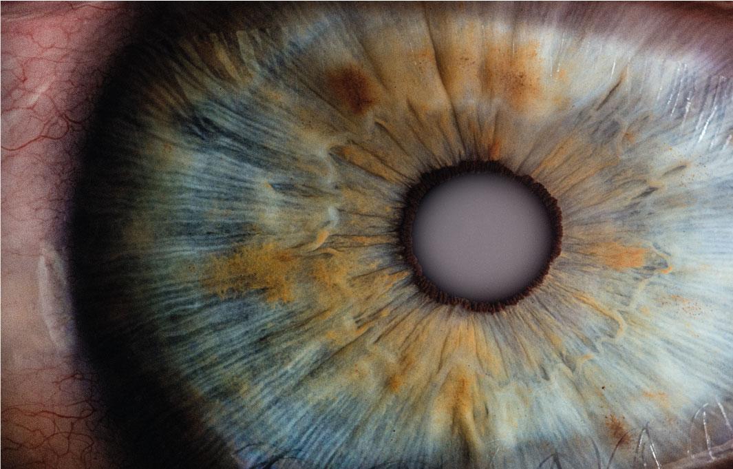 Nahaufnahme einer Pupille mit grauer Star (Katarakt)