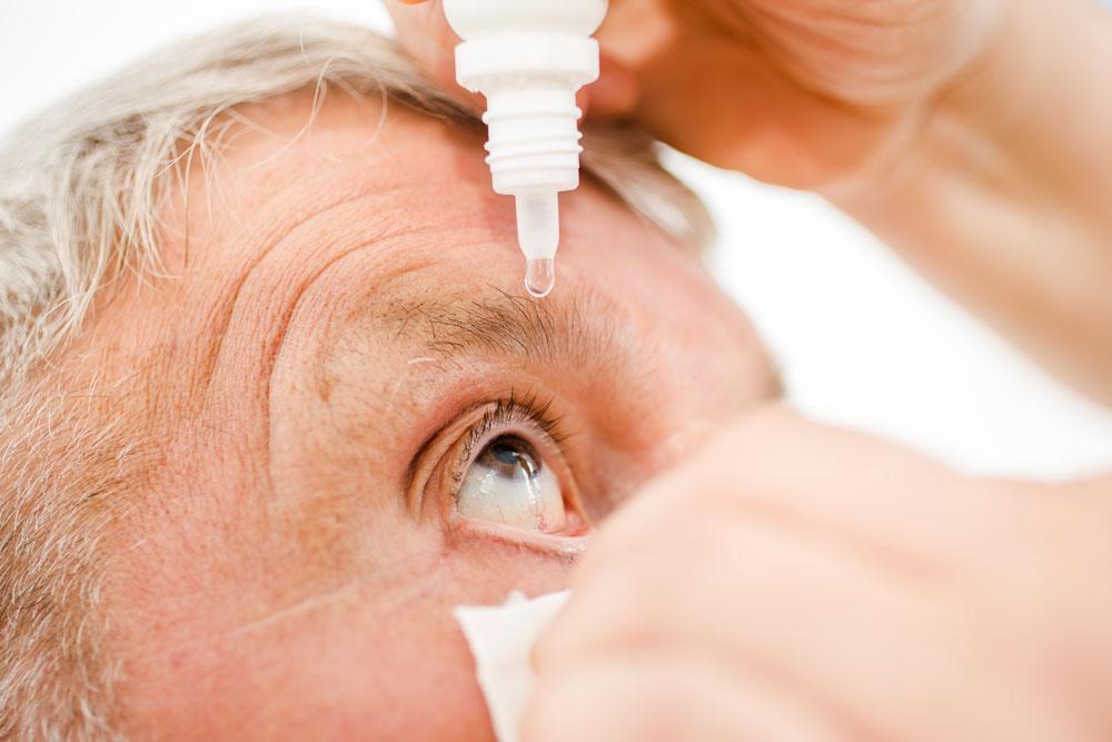 Nahaufnahme eines Patienten der Augentropfen getropft bekommt | IVOM